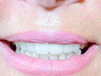 Зубная эстетика