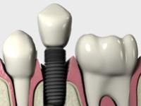 Реабилитация рта