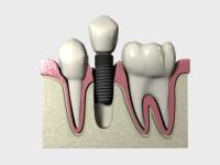 השתלת שיניים ממוחשבת